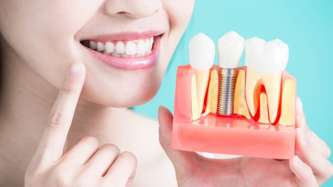 Woman Holding A Dental Implant Model