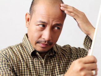 man touching his thinning hair